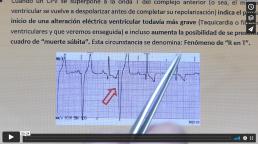 AXON COMUNICACION, INTERPRETACION ECG