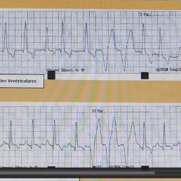 AXON COMUNICACION, VIDEO ECG