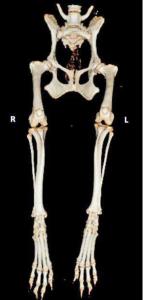 AXON COMUNICACION, Osteotomía femoral distal para el tratamiento de la retroversión femoral