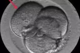AXON COMUNICACION, Las células de los embriones trabajan en equipo para auto-repararse
